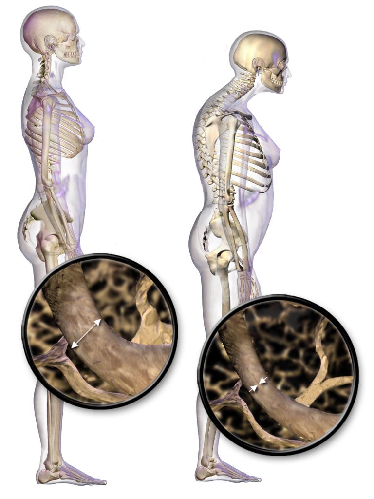 پاورپوینت عوامل پوسیدگی استخوان